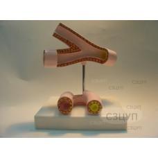 Модель Здоровые и поврежденные сосуды